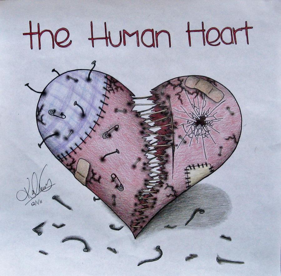 What is a heart failure?