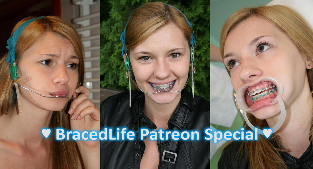 BracedLife Patreon - Anna Orthodontic Headgear by MedicBrace on ...