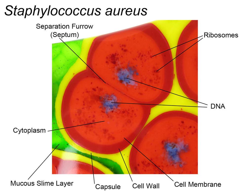 Staphylococcus aureus bacteria Fused Glass Dish by trilobiteglassworks