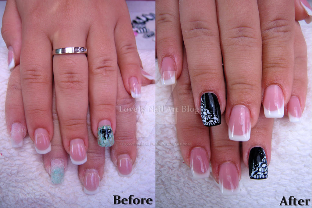 Before and after by lovely-nail-art on DeviantArt