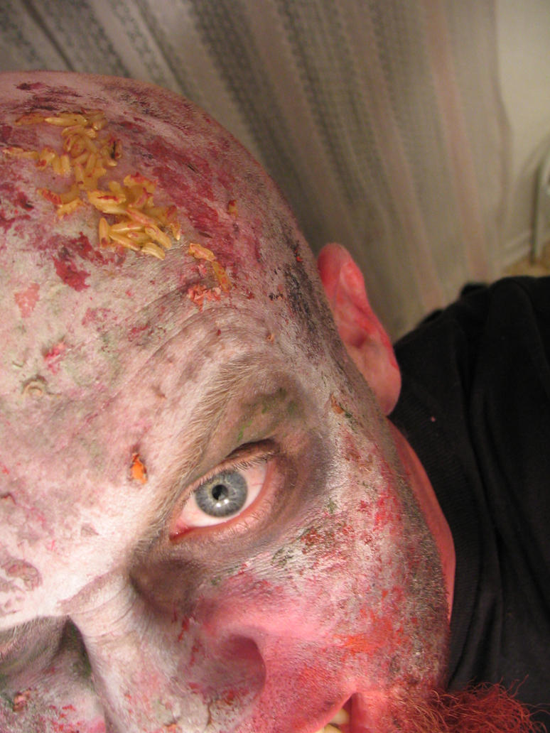 maggots in people - photo #7