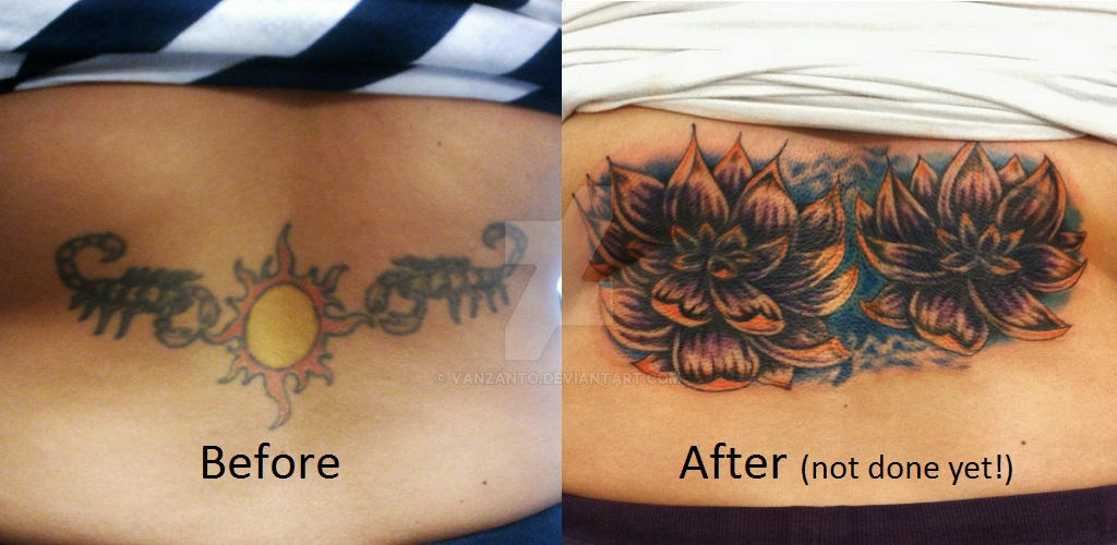 Lotus Cover Up Tattoo By Vanzanto On Deviantart