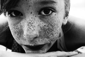 Freckles by xfallxoutxgirlsx