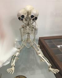 Skeleton Twins Stock