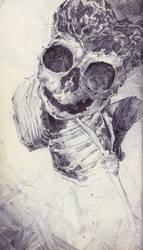 Anencephalic Fetal Skull