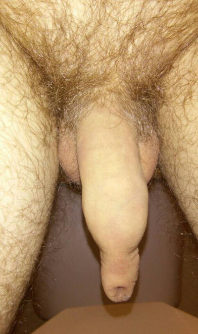 Very Long Foreskin by SuicideDanceLesson