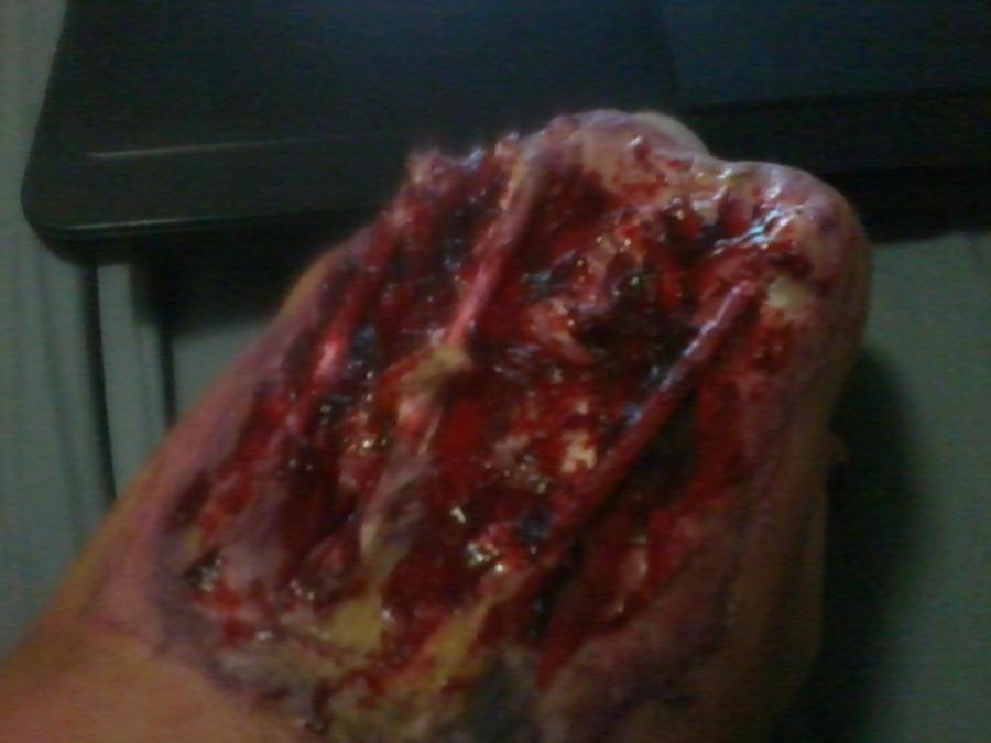 Melting skin to the bone by Sirvalenine