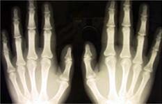 Röntgende neden kemiklerimiz görünür?