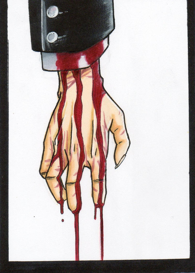 Bleeding hand by DieWalkyrie on DeviantArt