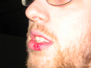 Busted Lip