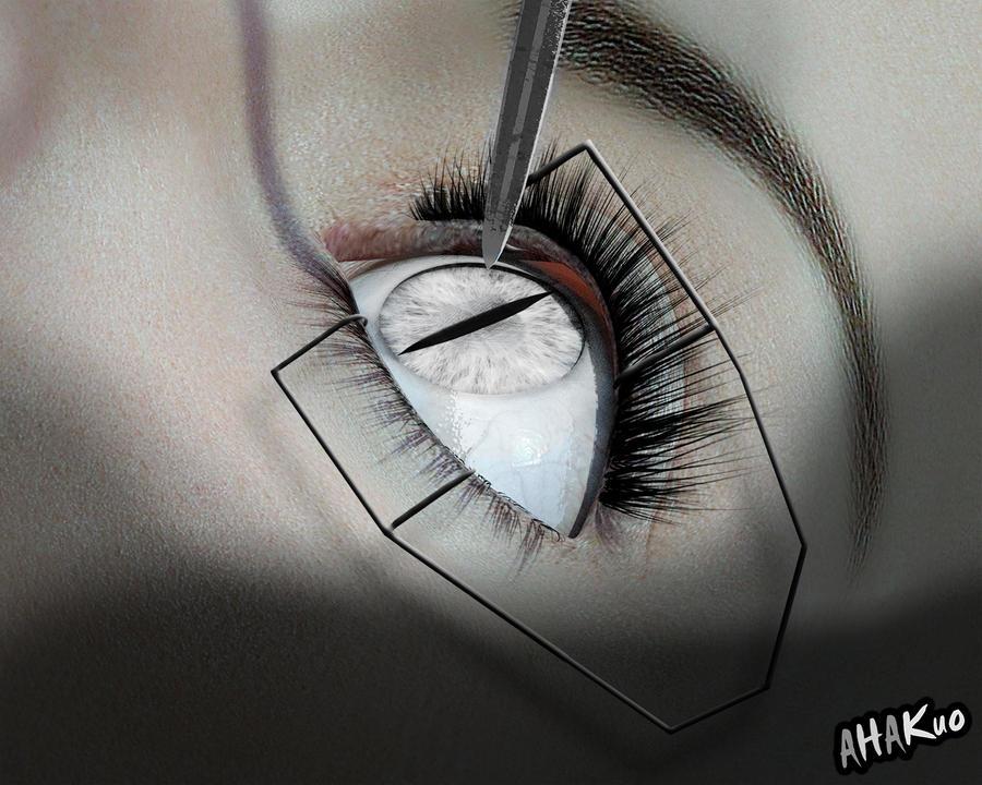 Snake Eye Surgery