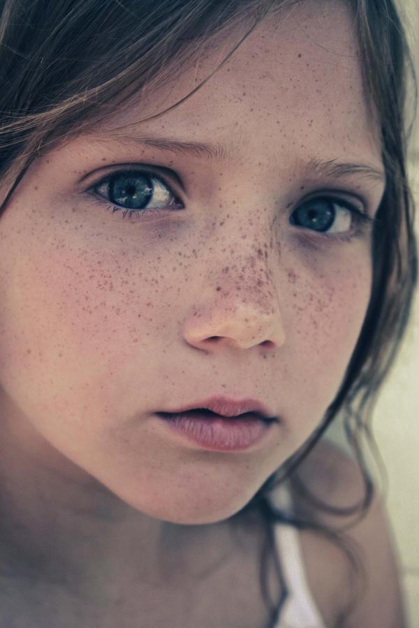 Sometimes   Nose Freckles