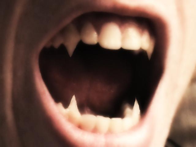 from Grayson teeth gay vampire