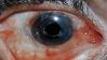 Bloodshot Eye Stamp by space-n00dles