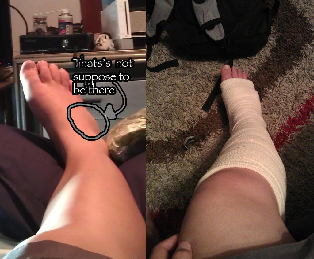 Stupid-Ana's-Stupid-Foot by LadyCyco