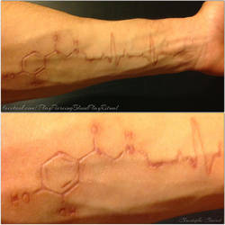 My arm scars (adrenaline/infarct cardio) by TheChristOff