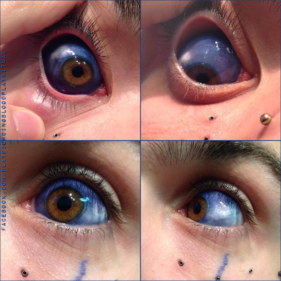 Eyelid Piercing Gone Wrong Eyeball, sclera tattoo...
