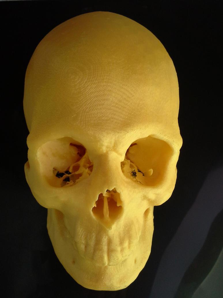 3D printed skull by nevit