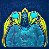 Eyes - Radiology Art by nevit