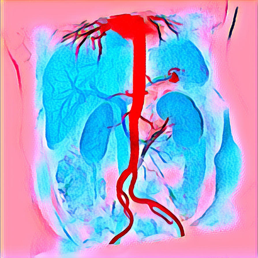 Abdominal Aorta Color MRA 20180305 164753 by nevit