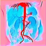 Abdominal Aorta Color MRA 20180305 164753 by nevit