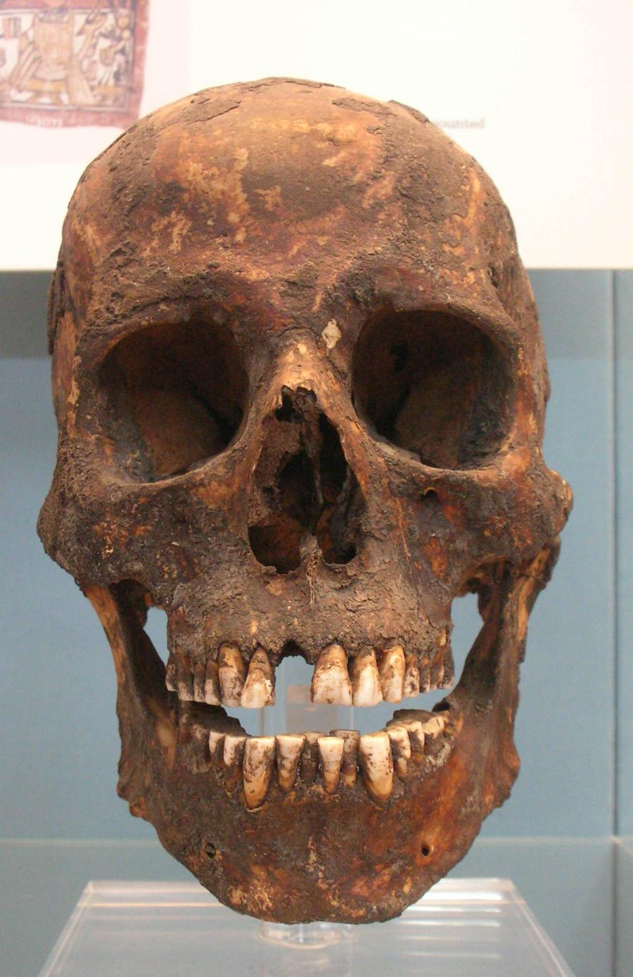 Egyptian skull