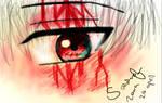 A bloody eye