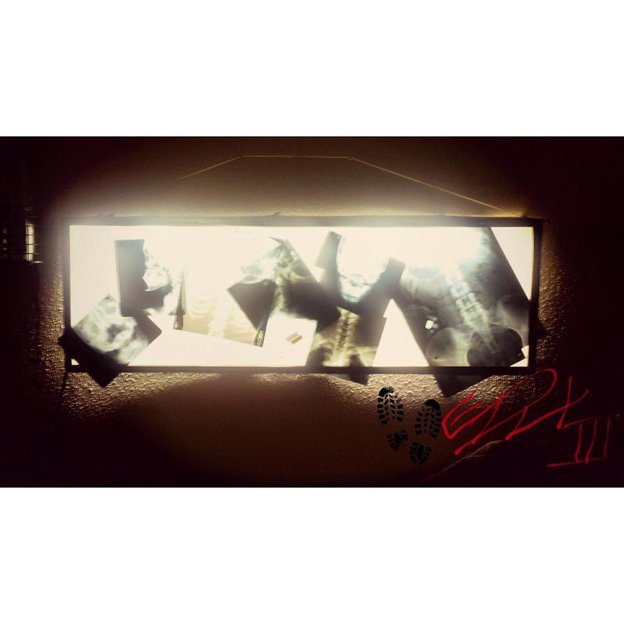 x-ray wall art by cyplex