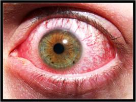 Inflamed Eye by Aerumnosus