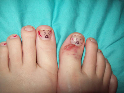 Zombie Toe by JillTheCrazy1