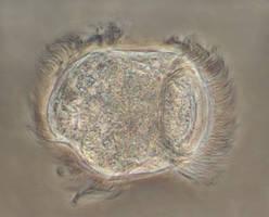 Urceolaria mitra
