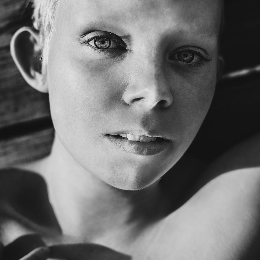 Albino by Anselmeth