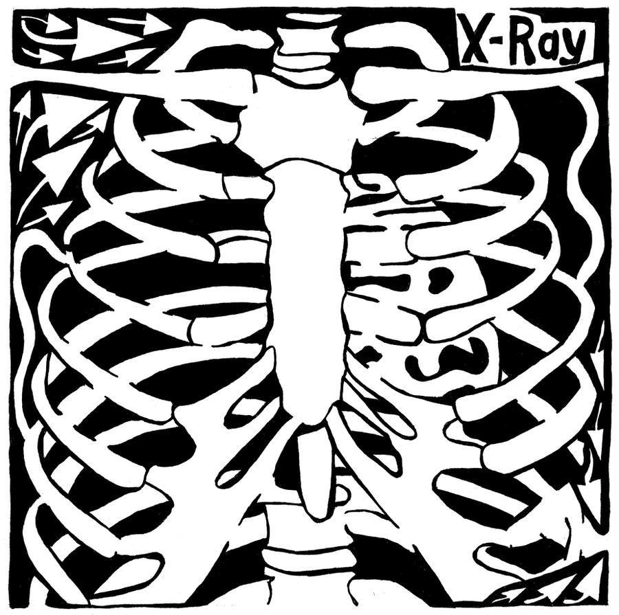 X-Ray Maze by ink-blot-mazes