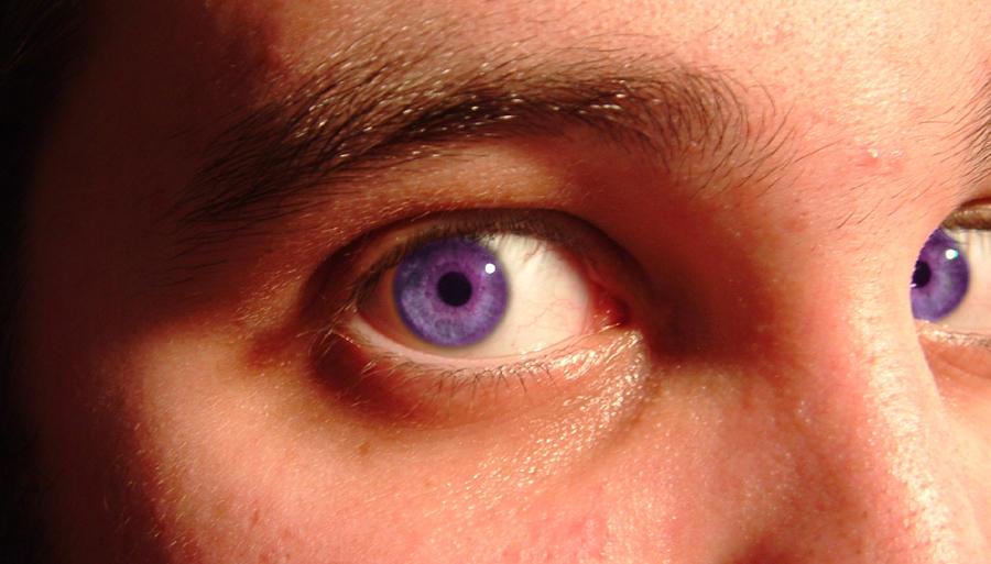 Mm Natural Eye