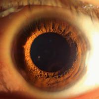Super Eye Macro by MizarII