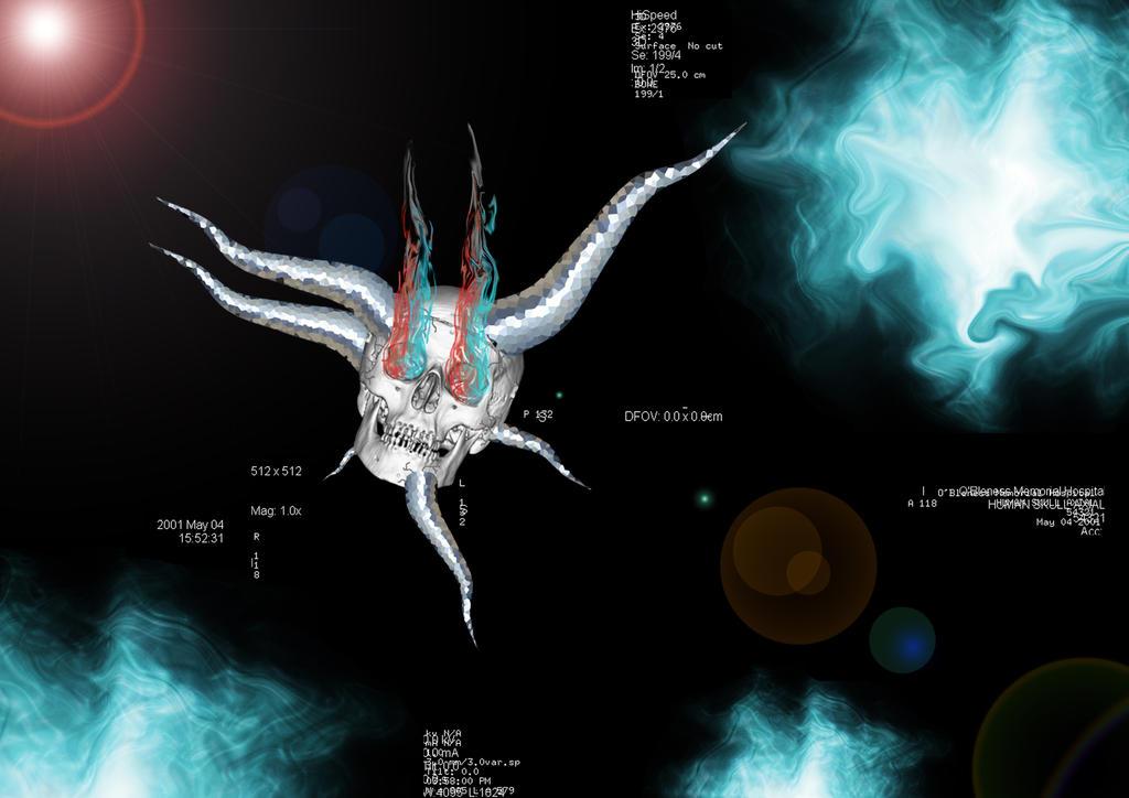 Black Hole Anatomy by 1nk-z0m813 on DeviantArt