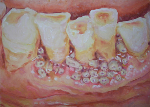 Maggot Teeth by mollytov