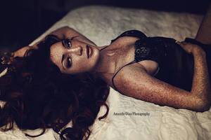 Freckles by Amanda-Diaz