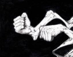 And I'm Fighting with Broken Bones
