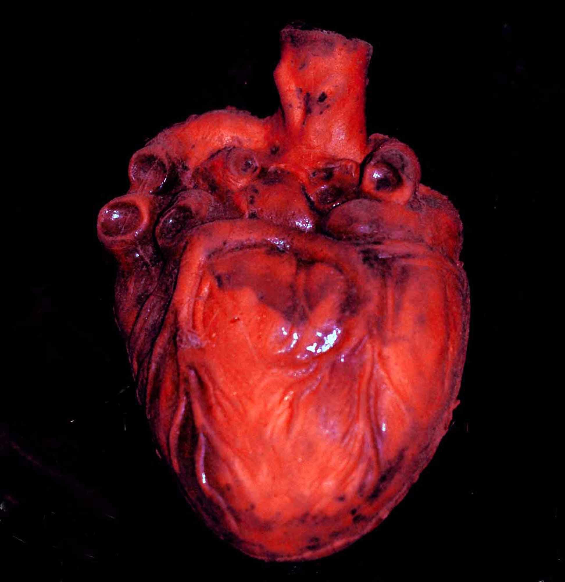 Картинки человеческого сердца с надписями, мишками теми