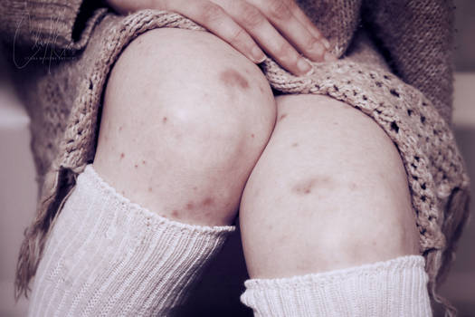 Visible wounds of 'Invisible' illness