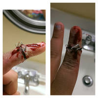 stappled finger by melartgirl
