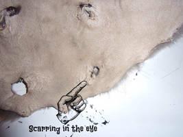 Pathological Beaver Mask Scarring