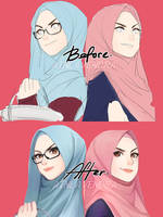 Before and After by AinLavendra