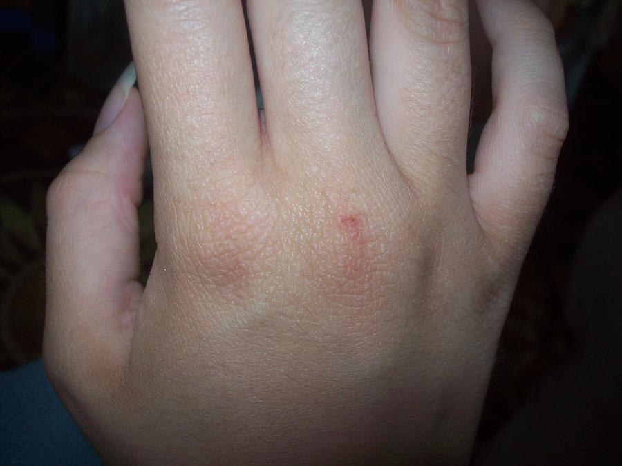 mild eczema on hand