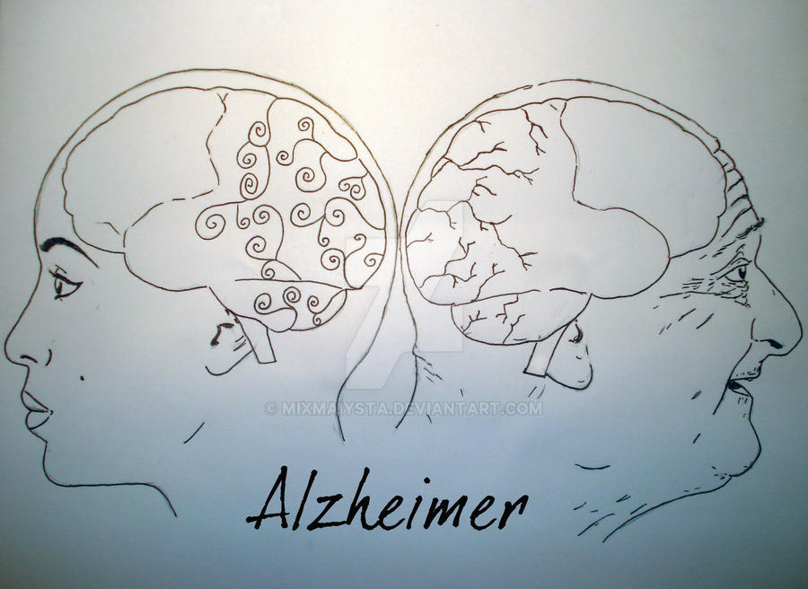 an analysis of a project on alzheimers disease Downloading content for analysis  evidence for amyloid scanning (ideas) study will  guidelines for alzheimer's disease alzheimers dement.