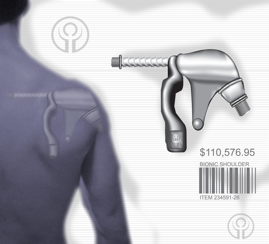 Bionic Shoulder by victomon