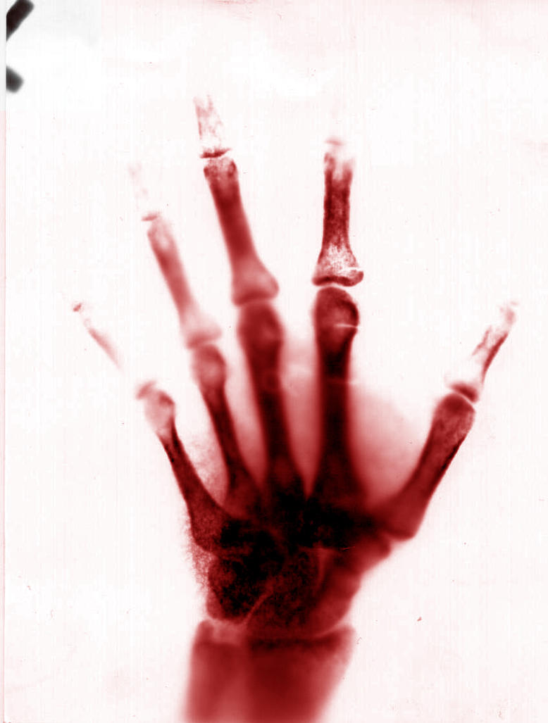 Images of Bloody Hands Aesthetic - #rock-cafe