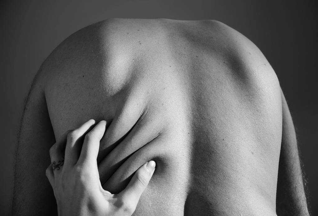 Excess skin II by Lucienel