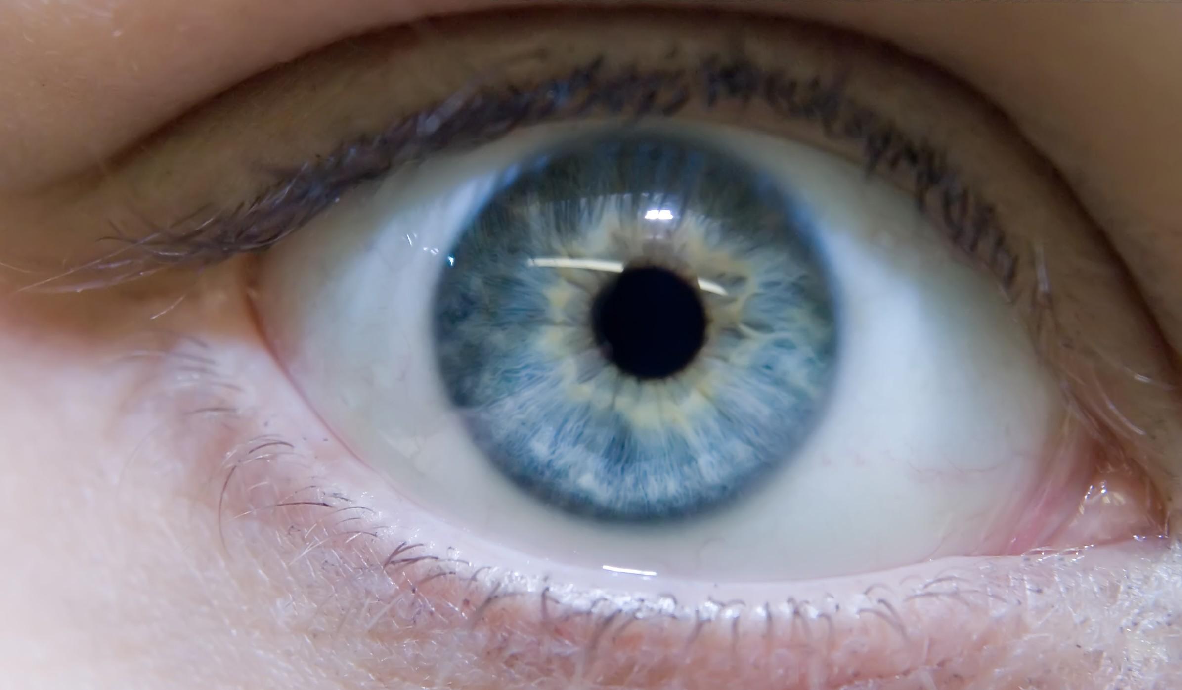 Как сделать белки глаз человека белее? Видео - Woman's Day 3